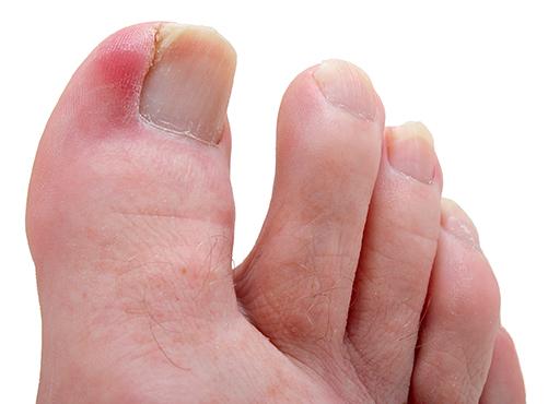 Грибок ногтя мизинца